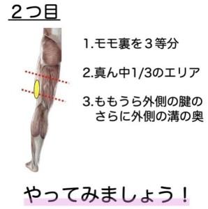 坐骨神経2