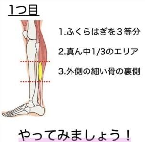 1坐骨神経